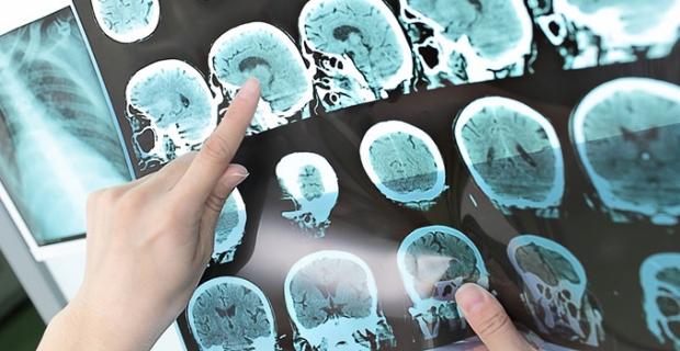 Nöroloji Uzmanı Dr. Tavşanlı: Long Covid sonrası sinir sistemi rahatsızlıkları ortaya çıkabiliyor!