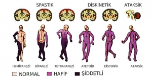 Beyin felcine evde tedavi! Serebral Palsi nedir? SP tedavisi ne kadar sürmeli?