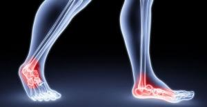 Uzun süre hareketsizlikten sonra spora başlarken dikkat! D vitamini takviyesi neden önemli?