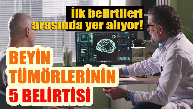 Kalıtsal hastalıklar beyin tümörlerine neden olabiliyor!